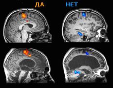 Учёные наладили связь с пациентом в вегетативном состоянии