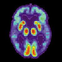 Открыта причина «болезни Альцгеймера»