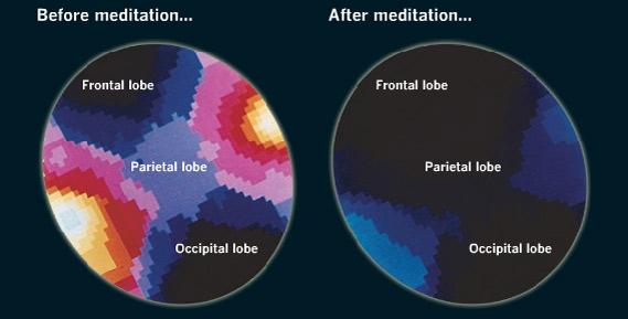 Сила Медитации и ее влияние на наш мозг